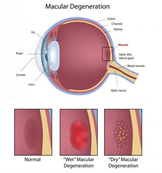 boala vederii este